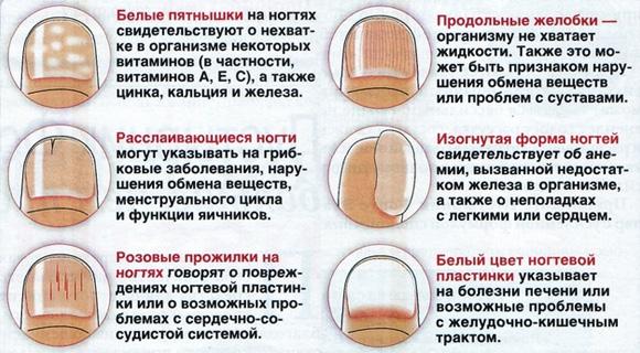 lynki-na-nogtyax-1