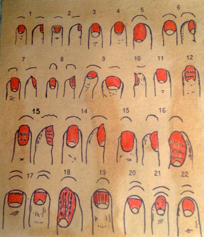 Таблица, что означают лунки на ногтях